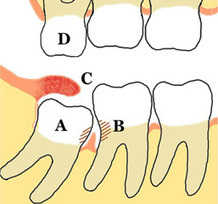 Four Wisdom Tooth Impactions and What They Mean | Anatomy | Scoop.it