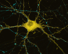 How Our Brains Store Recent Memories, Cell by Single Cell | Social Neuroscience Advances | Scoop.it