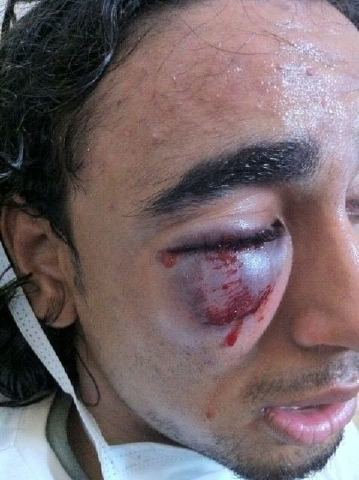 Injured Freedom Protester in Karranah 8/18/2011 | Human Rights and the Will to be free | Scoop.it