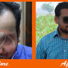 ASG Hair Transplant Centre India