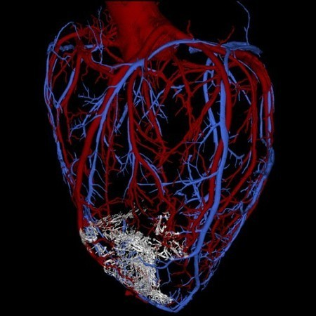 Human stem cells used to repair damaged monkey hearts | Cell Therapy & Regenerative Medicine | Scoop.it