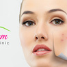 Laser Hair Removal in Plano Tx