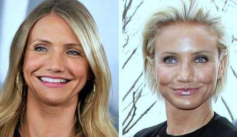 Celebrity Plastic Surgery Gone Wrong In Celebrity Plastic Surgery