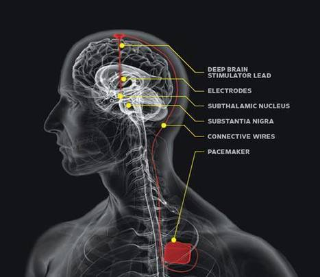 Deep Brain Stimulation's Dramatic Effect On Parkinson's Patient Demonstrated | Tracking the Future | Scoop.it