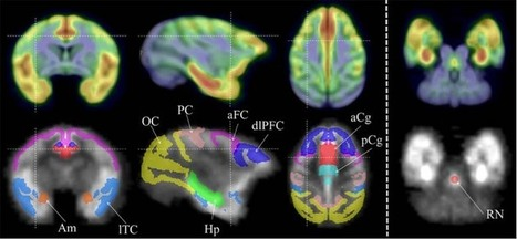 Waisman Laboratory for Brain Imaging and Behavior | Social Neuroscience Advances | Scoop.it