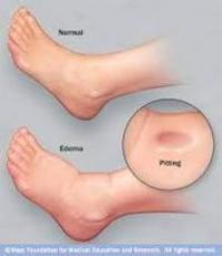 Why Liver Cirrhosis Patients have Edema on Feet...