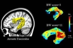 Predicting Dyslexia — Even Before Children Learn to Read | Eagle Hill Southport | Scoop.it