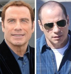 "Résultat de recherche d'images pour ""hair transplant before and after john travolta"""
