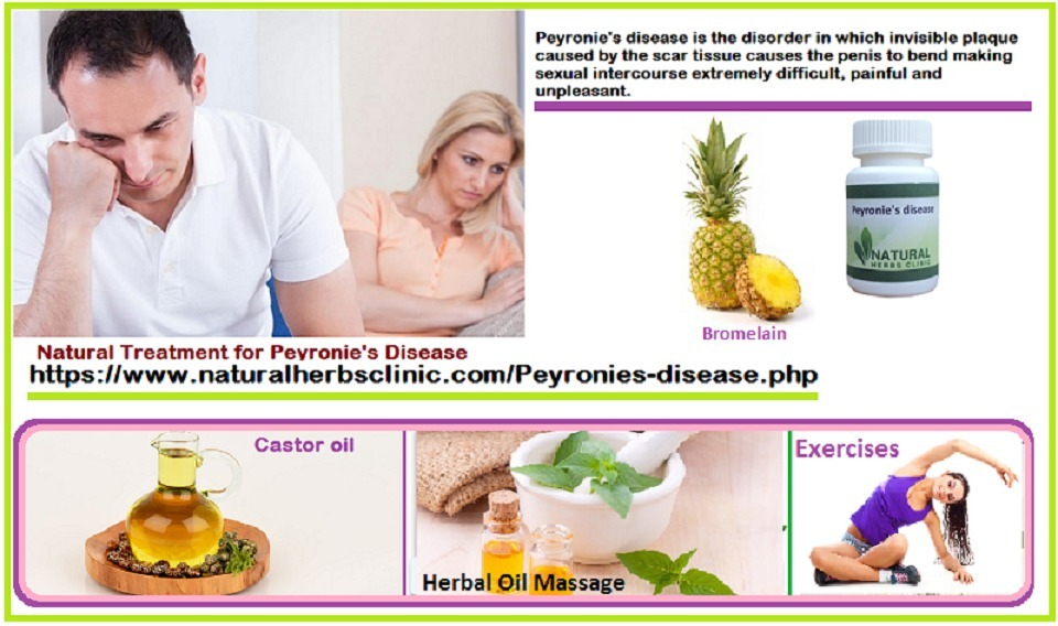 5 Natural Treatments for Peyronie's Disease | N