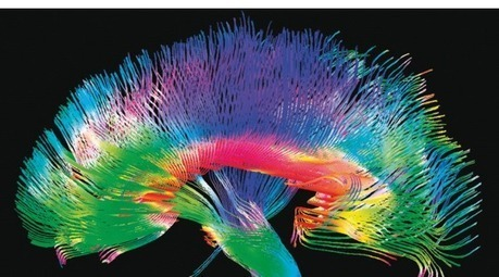 Only Connectome | Neuroscienze | Scoop.it
