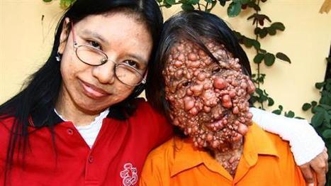 "Severe Neurofibromatosis cases - The ""Bubble"" People   Amazing Science   Scoop.it"