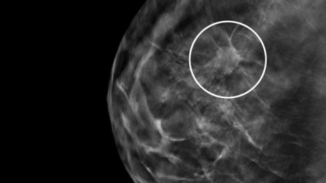 3-D Mammography Test Appears to Improve Breast Cancer Detection Rate   Breast Cancer and Healing ~ The Pink Paper   Scoop.it