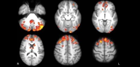 Sclérose en plaques : comment les jeux vidéo peuvent réorganiser le cerveau | GAMIFICATION & SERIOUS GAMES IN HEALTH by PHARMAGEEK | Scoop.it