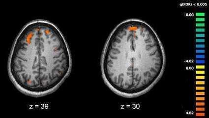 'Schizophrenia' does not exist, argues expert | Social Neuroscience Advances | Scoop.it