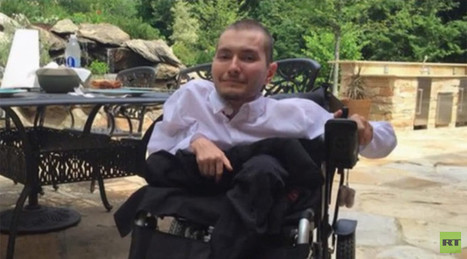 $11mn, 36-hour historic head transplant to be carried out in China in 2017 | Organ Donation & Transplant Matters Resources | Scoop.it