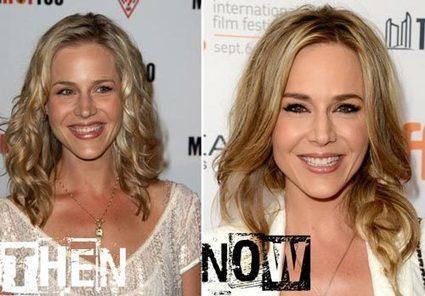 Julie Benz Plastic Surgery Before U0026 After Photos