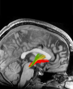 Neuroscience of need - Understanding the addicted mind - 2012 SPRING - Stanford Medicine Magazine - Stanford University School of Medicine   Philosophy and Cognition   Scoop.it
