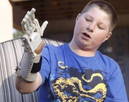 Sirris - Des prothèses et orthèses abordables imprimées en 3D   Infographie 3D   Scoop.it