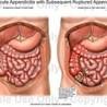 Obat radang paru-paru Alami
