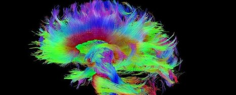 Harvard Scientists Think They've Pinpointed the Physical Source of Consciousness   Knowmads, Infocology of the future   Scoop.it