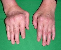 Inclusion Body Myositis Treatment' in Herbs Solutions By