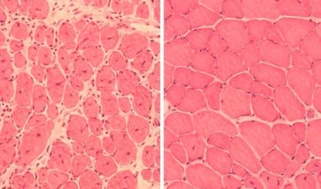 Pour la première fois, la reprogrammation cellulaire a inversé le processus de vieillissement chez des souris | Le pouvoir du transhumanisme | Scoop.it