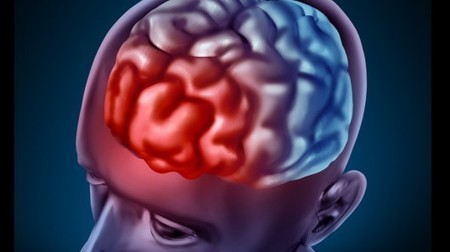 Natural molecule found to slow the onset of Alzheimer's disease   Longevity science   Scoop.it