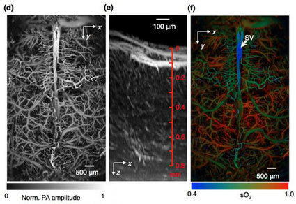 Novel high-tech imaging method allows rapid imaging of vital functions in the living brain | Amazing Science | Scoop.it