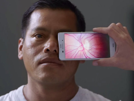 Smartphones Are So Smart They Can Now Test Your Vision | Realms of Healthcare and Business | Scoop.it