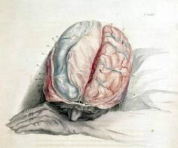 Dietary Amino Acids Relieve Sleep Problems After Traumatic Brain Injury in Animals | Neuroscienze | Scoop.it