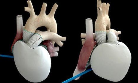 Pour la première fois, un coeur artificiel a été greffé à un homme - Le Nouvel Observateur | Organ Donation & Transplant Matters Resources | Scoop.it