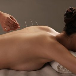 L'acupuncture inefficace pour le genou   À Votre Santé   Scoop.it