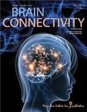 Autism risk gene linked to differences in brain structure   Horse Boy World   Scoop.it