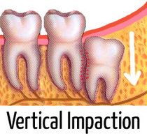 Four Wisdom Tooth Impactions and What They Mean | Diseases and Conditions | Scoop.it