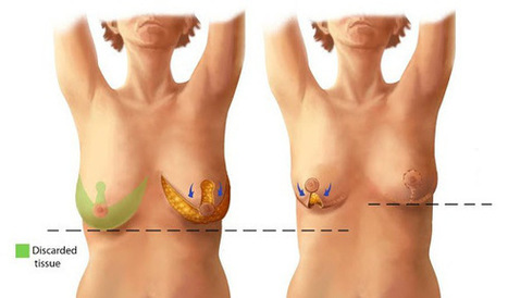 Hair on breast normal