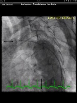 CathSource app on iPad is an essential cardiac catheterization resource | Medical Apps | Scoop.it