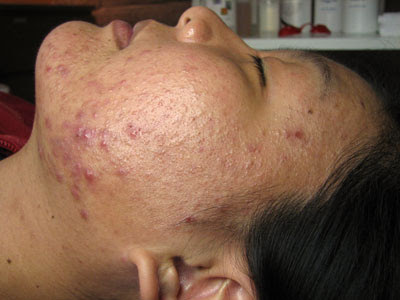Foods That Cause Acne | Health for Teens | Scoop.it