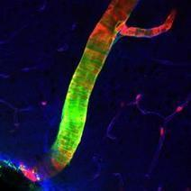 Scientists Discover Previously Unknown Cleansing System in Brain | Technology and Risks | Scoop.it