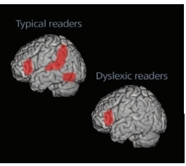 Brain Research on Dyslexia | Meeting the Needs of Diverse Learners | Scoop.it