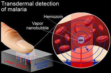 Vapor nanobubbles rapidly detect malaria through the skin | Chasing the Future | Scoop.it