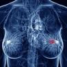 Diagnostico por imàgenes