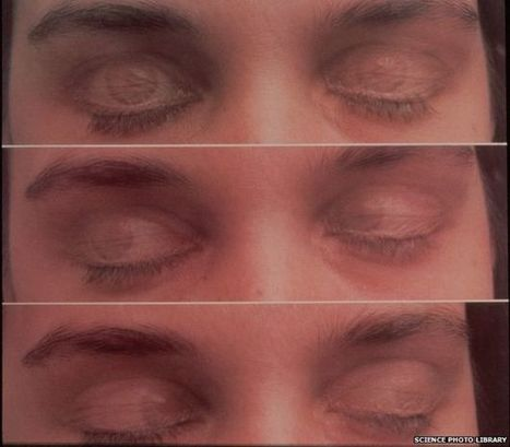 Eye movements 'change scenes' during dreams - BBC News | Eye Movement Desensitisation and Reprocessing EMDR | Scoop.it