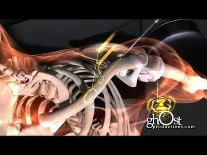 Animaciones médicas para entender nuestro cuerpo — Amazings.es | Educación 2.0 | Scoop.it