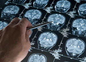 Drug combo active in breast cancer with brain metastases | Breast Cancer News | Scoop.it