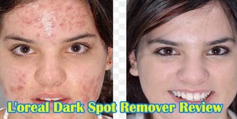 Rapid Tone Repair Dark Spot Corrector by Neutrogena #16