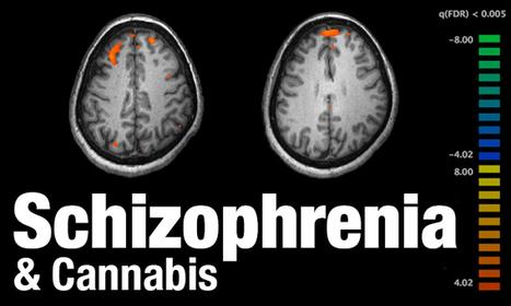 Brazilian Study: Cannabis Therapy May Help Treat Schizophrenia   Vloasis sci-tech   Scoop.it