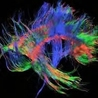 Multiple sclerosis New Drugs Review