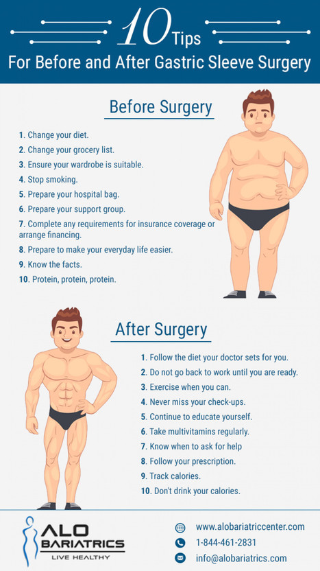 Weight loss surgery sleeve in mexico