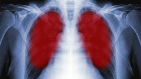 Promising lung cancer breath test device moves into clinical trials   Longevity science   Scoop.it
