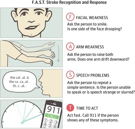 Warning Signs of a Stroke | Heart and Vascular Health | Scoop.it